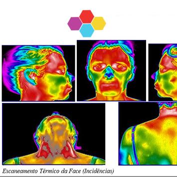 Termografia Infravermelha no Diagnóstico da Dor Orofacial Crônica